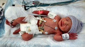 Carter after being inducted into the NICU